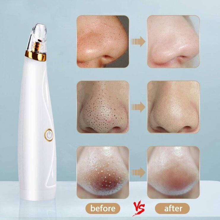 Niveda Vacuum Blackhead Detector Facial Cleanser